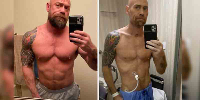 Coronavirus Survivor Shares Shocking Body Transformation Pics